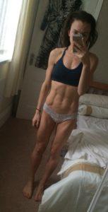 anorexic dancer